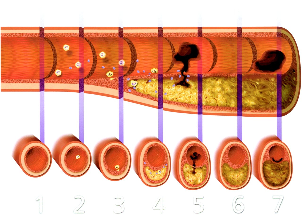 Placi aterosclerotice