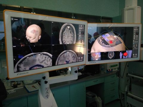 intervenții neurochirurgicale asistate SCJU Cluj Napoca 2