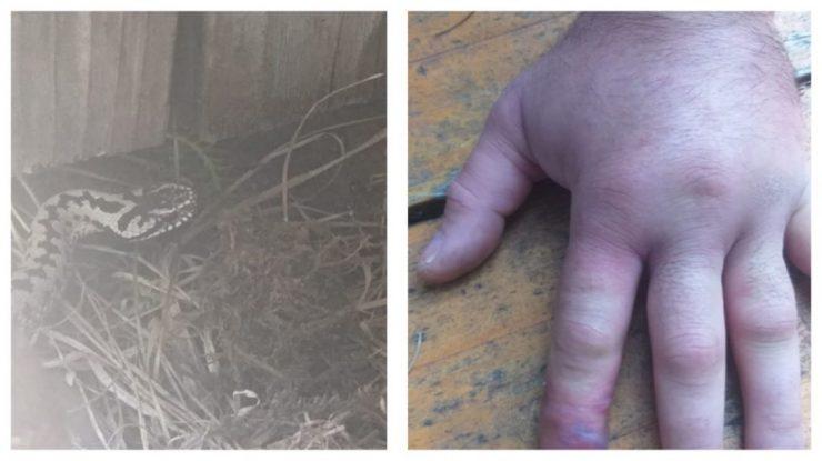 Ce a pățit un clujean muscat de viperă. Niciun spital din România nu are ser antiviperin!
