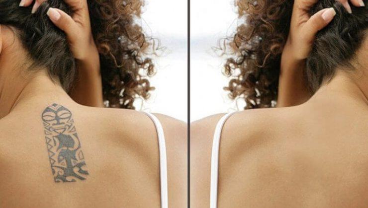 Ștergere tatuaje - informații complete despre îndepărtarea cu laser a tatuajelor